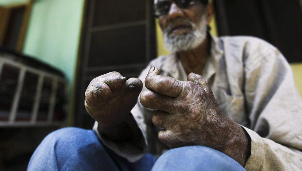 Día Internacional contra la Lepra (28 Enero)